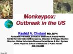 Monkeypox: Outbreak in the US