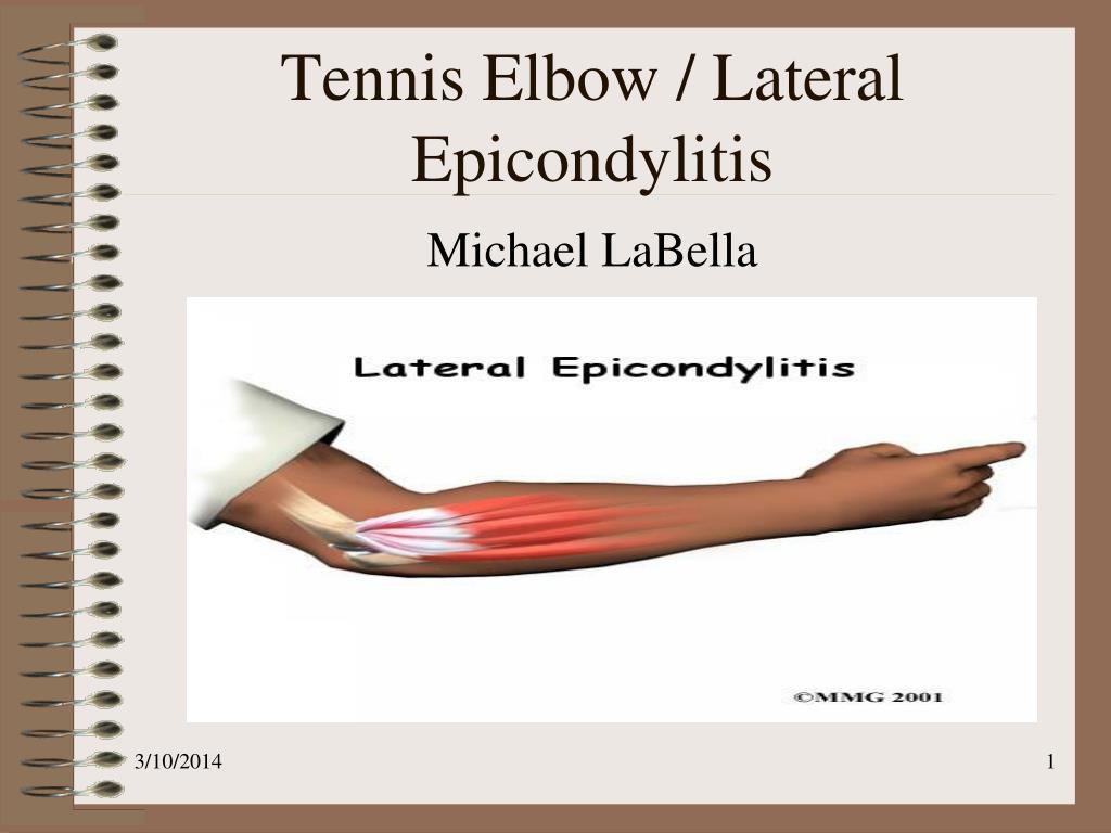 tennis elbow lateral epicondylitis l.