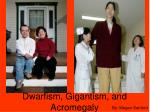 Dwarfism, Gigantism, and Acromegaly