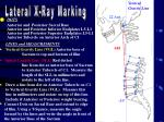 Lateral X-Ray Marking