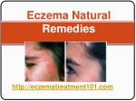 Eczema Natural Remedies