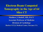 Electron Beam Computed Tomography in the Age of 64 Slice CT