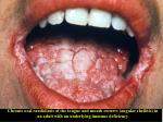 Chronic oral candidiasis of the tongue and mouth corners (angular cheilitis) in an adult with an underlying immune defic
